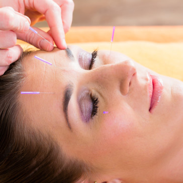 Alexandria Physio and Pilates - Acupuncture